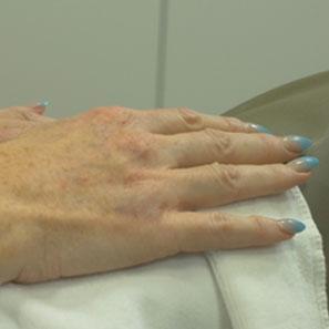 לפני חומצה היאלורונית בכפות הידייםפני