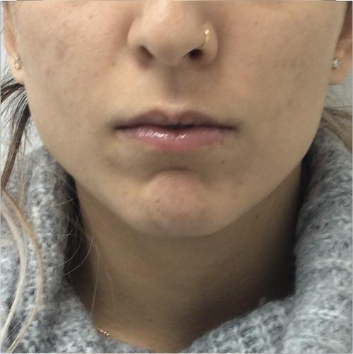 לפני מילוי ועיצוב שפתיים