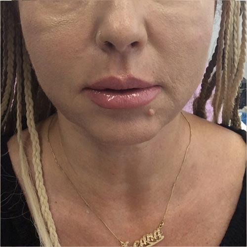 אחרי שאיבת שומן + מתיחה והרמת עור באמצעות חוטי אפטוס