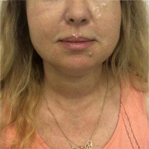 לפני שאיבת שומן + מתיחה והרמת עור באמצעות חוטי אפטוס