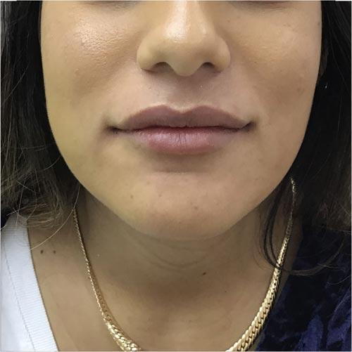 אחרי עיצוב ומילוי שפתיים