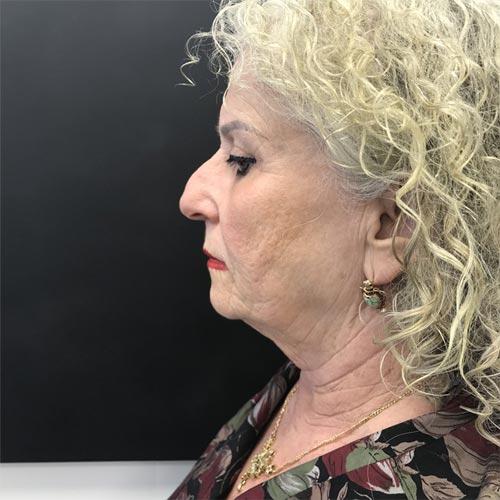 לפני מתיחת פנים וצוואר באמצעות חוטי אפטוס