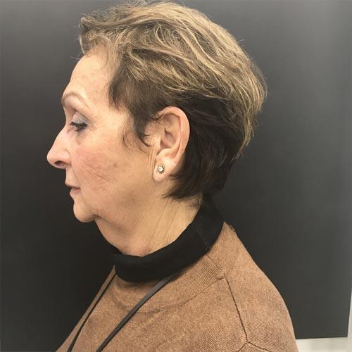 לפני מתיחת פנים ללא ניתוח
