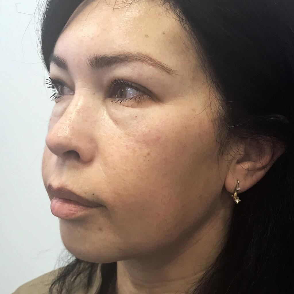 פנים לפני טיפול