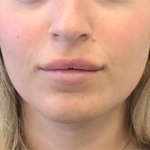 לפני הזרקת חומצה היאלורונית בשפתיים