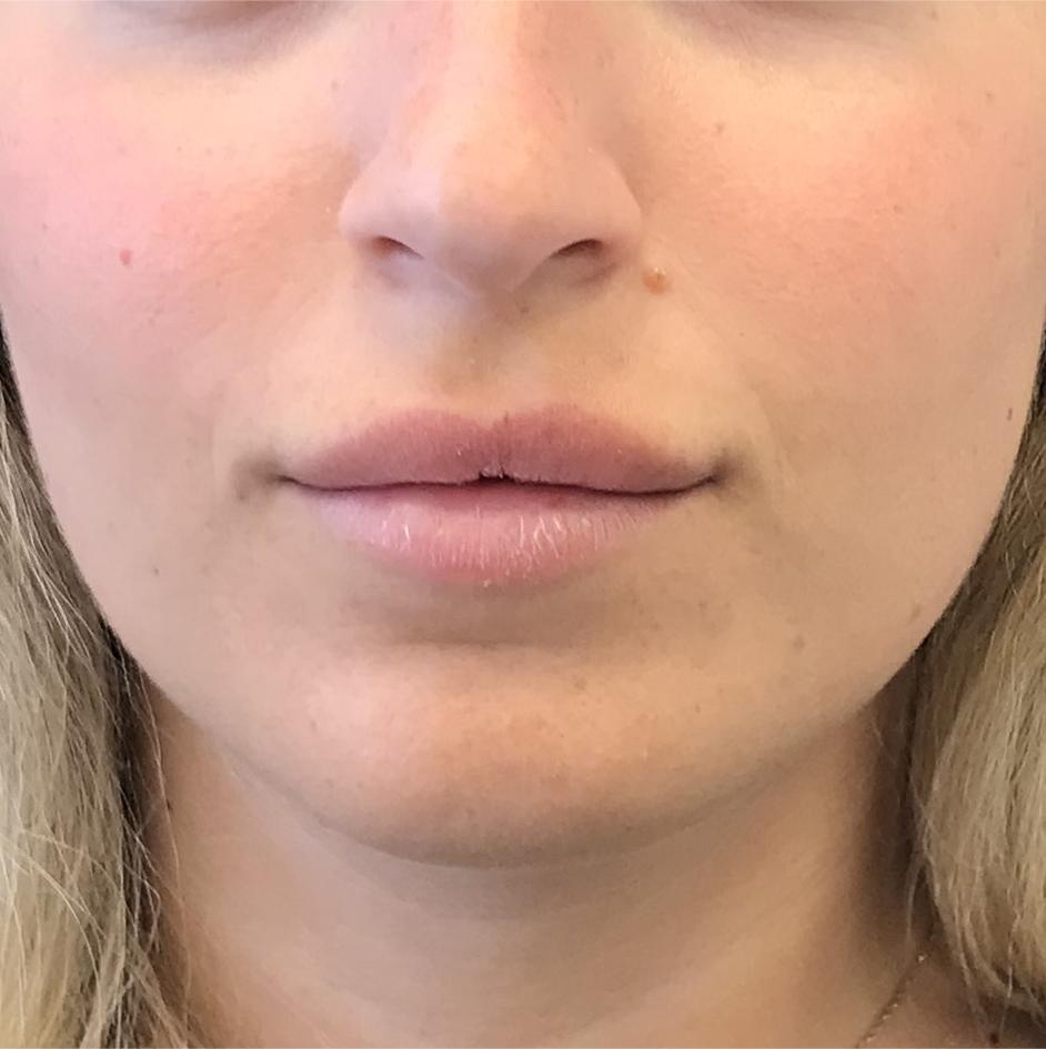 לפני עיצוב ומילוי שפתיים