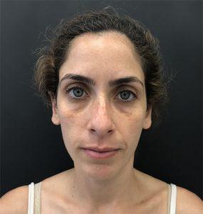 לפני טיפול בשקעים מתחת לעיניים