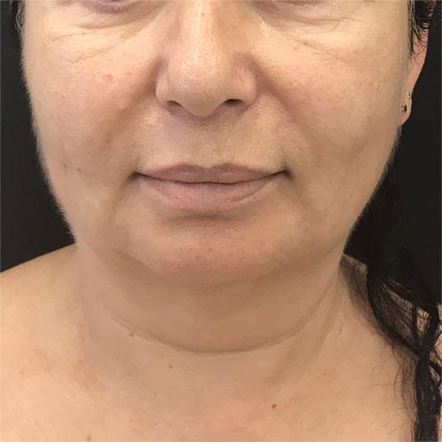 מראה פנים מקדימה לפני פיסול ועיצוב