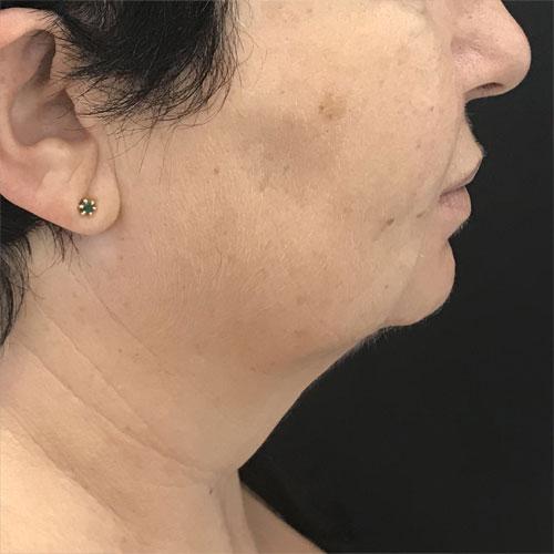 סנטר וצוואר לפני טיפול