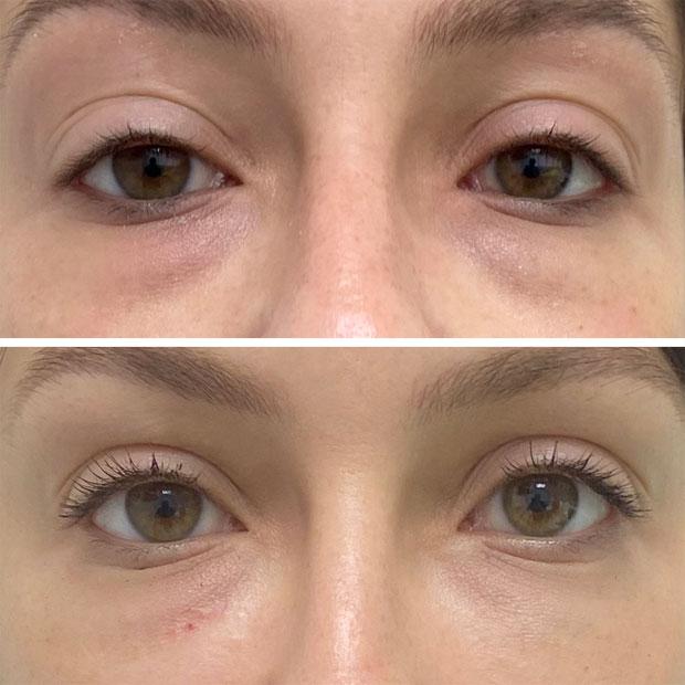 מילוי חומצה היאלורונית לשקעים מתחת לעיניים