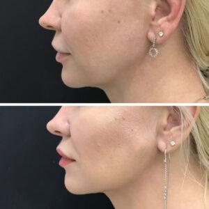 לפני ואחרי מתיחת פנים ללא ניתוח
