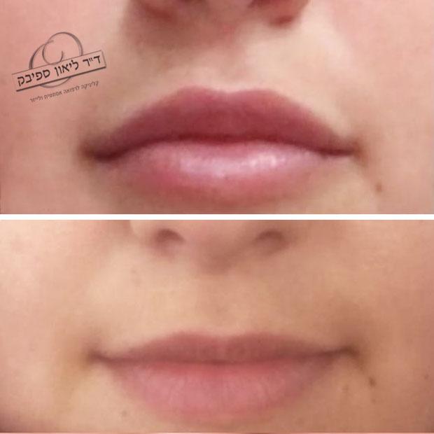 חומצה היאלורונית בשפתיים