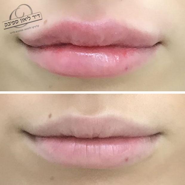 לפני ואחרי חומצה היאלורונית בשפתיים מבט מלפנים