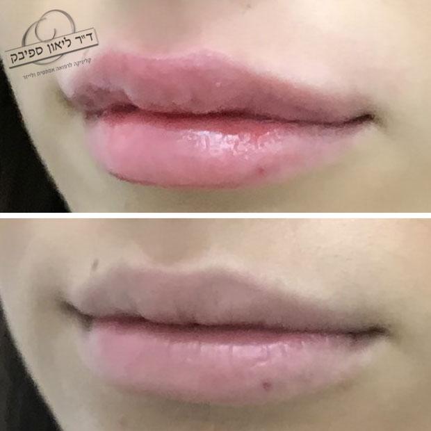 לפני ואחרי חומצה היאלורונית בשפתיים מבט מצד שני