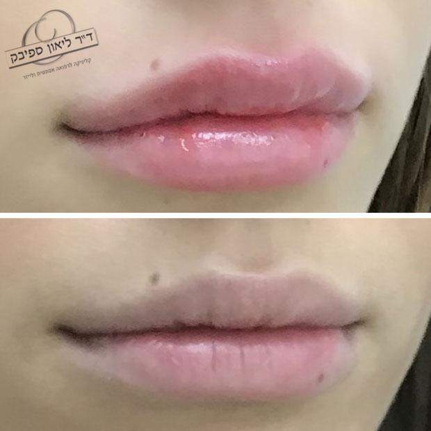 לפני ואחרי חומצה היאלורונית בשפתיים מבט מצד אחד