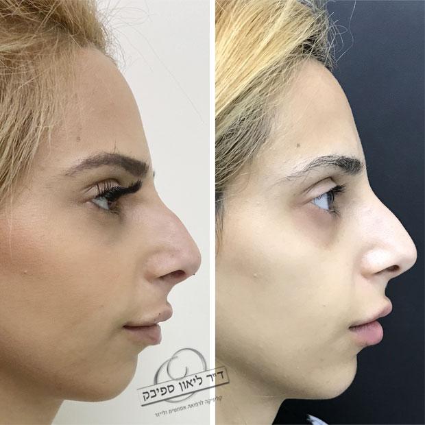 חומצה היאלורונית באף