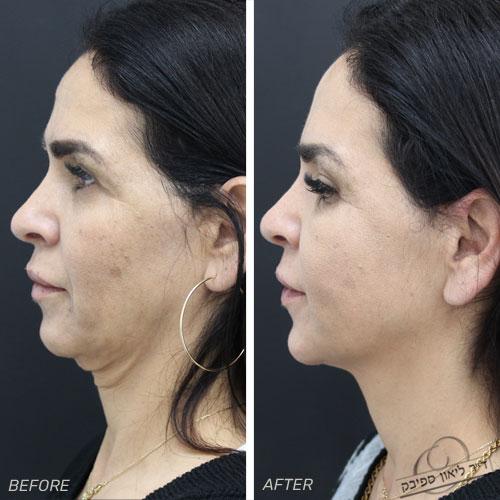 חוטי אפטוס לפני ואחרי שבועייםחוטי אפטוס לפני ואחרי שבועיים