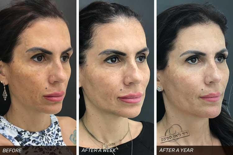 מתיחת פנים באמצעות חוטי Aptos שבוע ושנה אחרי