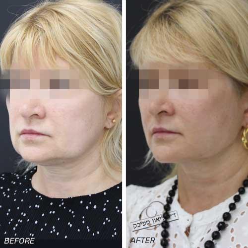מתיחת פנים באמצעות חוטי APTOS בשילוב שאיבה ממוקדת של עודפי שומן