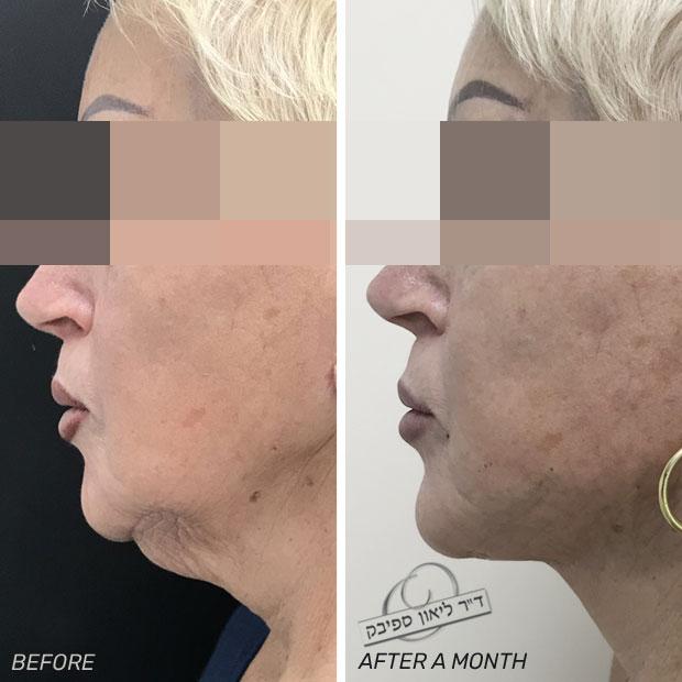 חוטים לפנים לפני ואחרי חודש