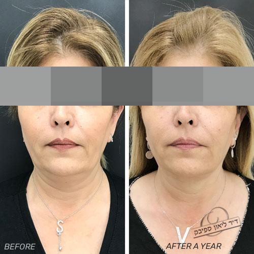 פייסטייט - תמונה לפני ותמונה שנה אחרי הטיפול