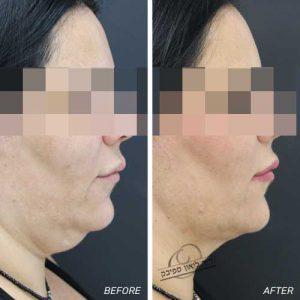 מתיחת פנים ללא ניתוח+שאיבת שומן