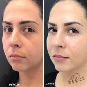 תונה של לפני ואחרי מילוי שקעים בעיניים